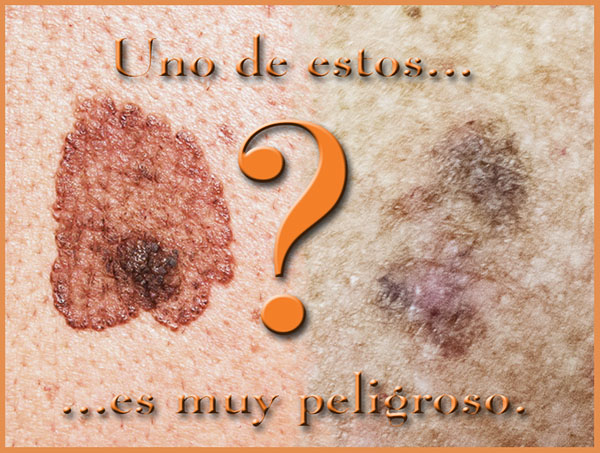 Melanoma versus queratosis seborreica