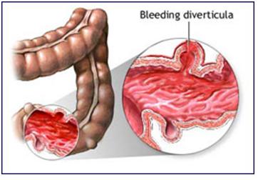 Viêm loét đại tràng gây chảy máu