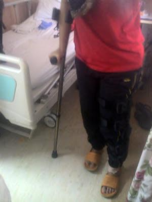 Selepas Pembedahan Penyambungan Ligemen Lutut - Perlu Jalani Rawatan Fisioterapi.