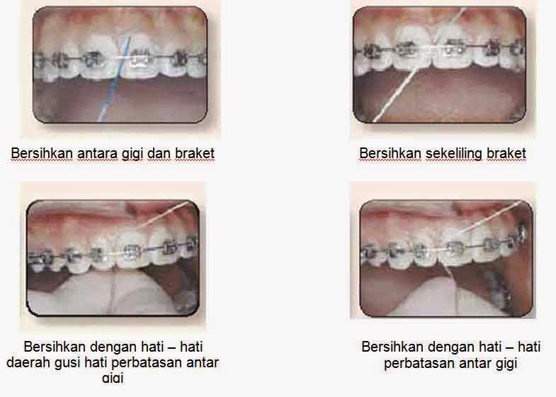Perawatan Gigi Mulut Selama Perawatan Orthodontik