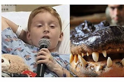 Bocah 9 Tahun Selamat dari Terkaman Aligator 2,7 Meter