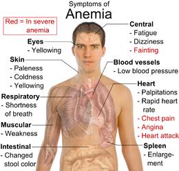 Kesehatan-Gejala Anemia