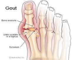obat penyakit asam urat atau gout