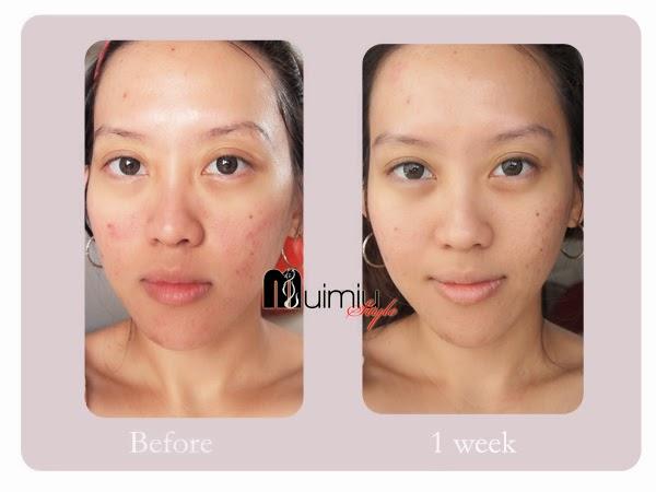 Product Review V10 Plus Pycnogenol Serum Mukti Lim Mua