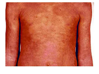 Psoriasis eritrodermica
