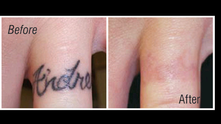Erase tattoo removal simple questions on tattoos tattoo for Ways to remove tattoos