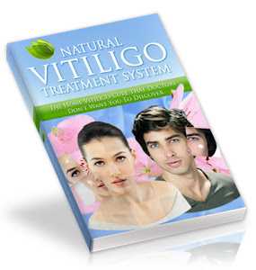 Natural Vitiligo Treatment