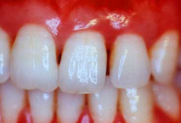 infected gums symptoms