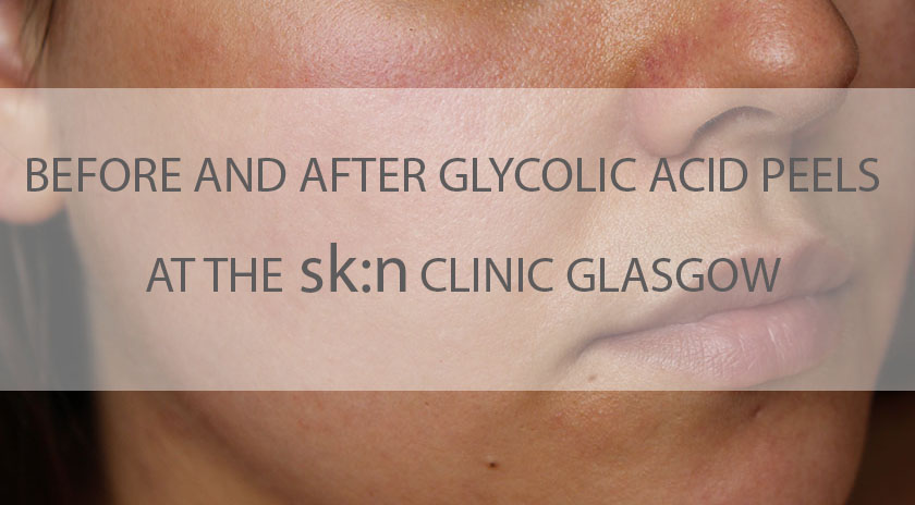 glycolic acid peels glasgow skin clinic before and after