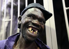 Picture of Man who won most Ugliest man in Zimbabwe