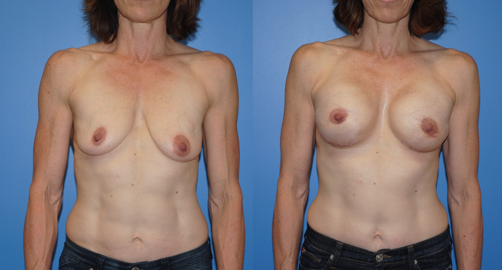 Breast Reconstruction Worth it? Reviews, Cost, Pictures