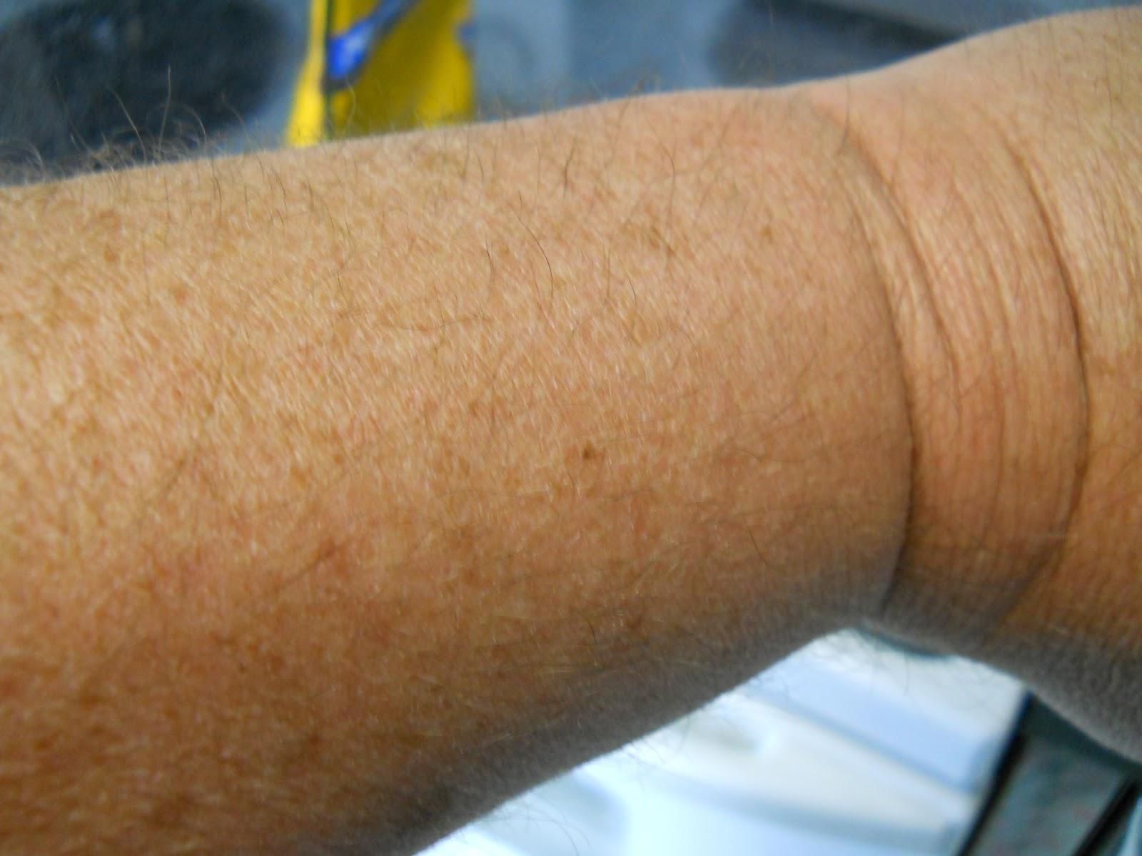 610 Credit Score >> Swollen Wrist Related Keywords - Swollen Wrist Long Tail Keywords KeywordsKing
