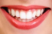 Tips Merawat Gigi Palsu Termudah Terlengkap