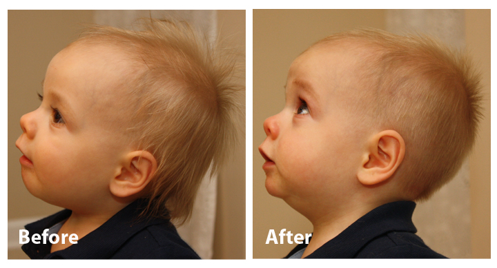 Baby Boy Haircuts Before And After Www Pixshark Com