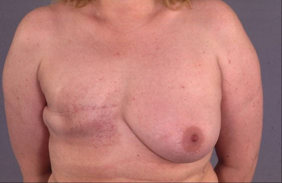 When Is Radiation Therapy Appropriate to Treat Breast