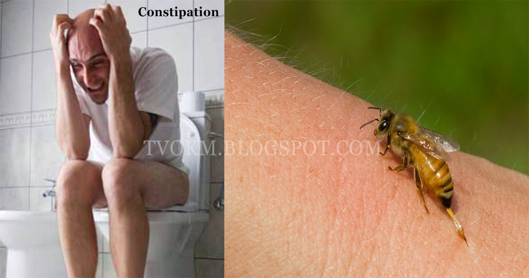 best way to cure constipation and bee stings
