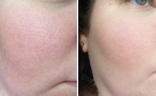 Mascara para fechar os poros