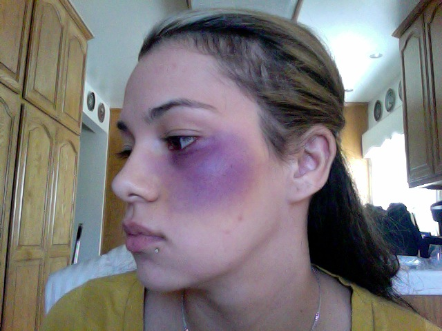 Makeup Ideas bruise makeup : Niki Chennell: Halloween Makeup: Bruising