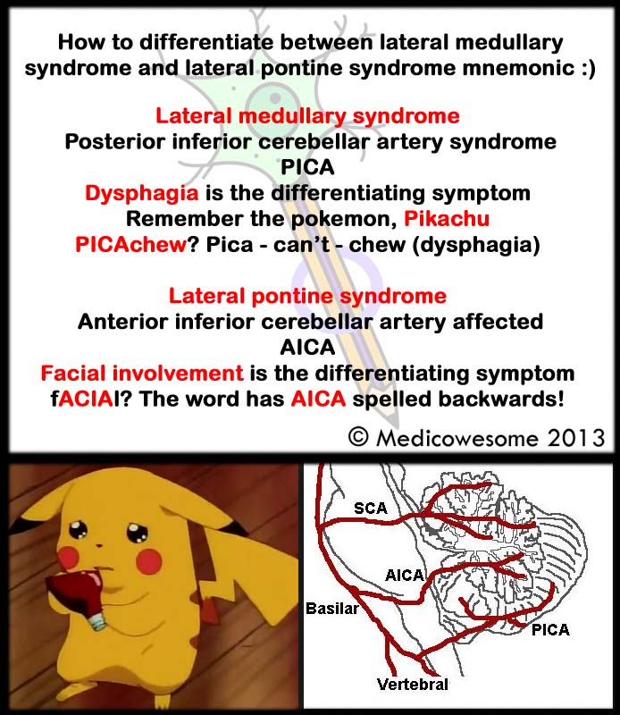Medicowesome: Lateral medullary syndrome and lateral pontine ...