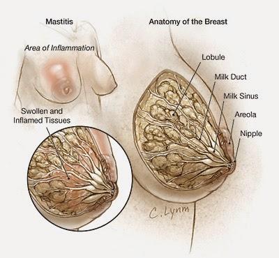 Obat Alami Mastitis