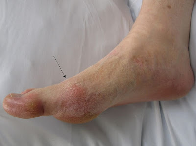 Gout-presenting-in-the-metatarsal-phalangeal-joint-of-the-big-toe