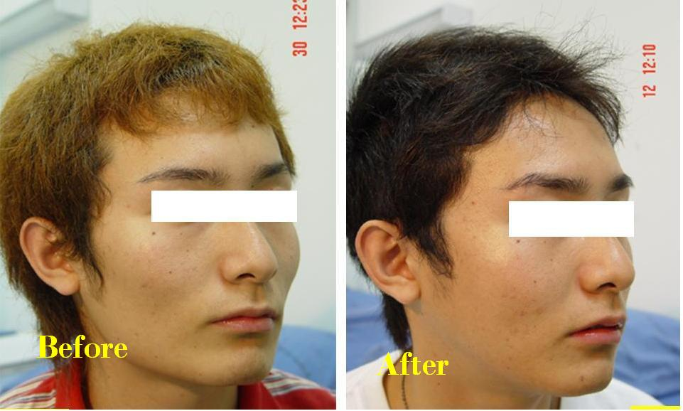 Mtf Bottom Surgery http://beforeandafterphotosofplasticsurgery.blogspot.com/2011/08/cheek-bone-reduction-before-and-after.html