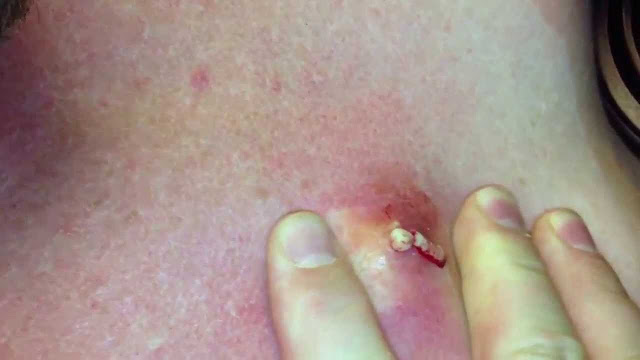 How to Get Rid of Sebaceous Cyst Without Surgery