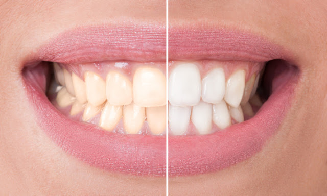 Say Goodbye To Expensive Teeth Whitening – Kick Plaque With This Ancient Ayurvedic Whitening Toothpaste