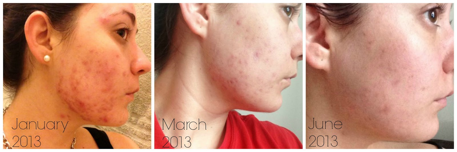 How I Cleared Up My Acne (6 Month Proactiv Update