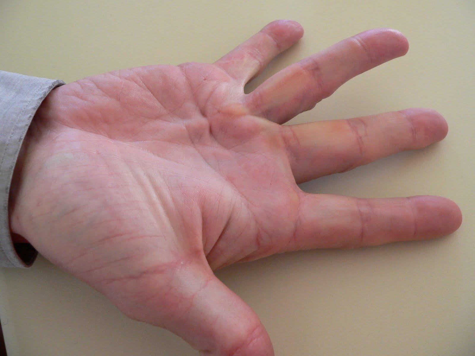 What Causes Peyronie's Disease?