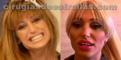 Vicky Xipolitakis antes y después