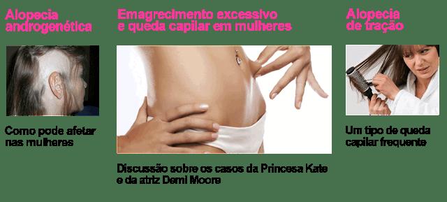 http://www.blogtricologiamedica.com.br/2013/11/mulheres-que-emagrecem-demais-anorexia.html