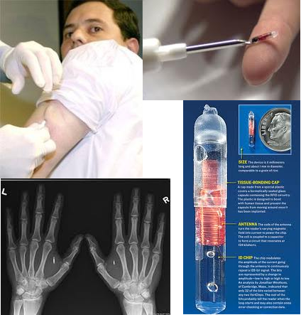 human chip implants essay Rfid chip implant in humans - good or or would die before you had it implanted again, this is about the chip in implementing it inside a human body will.