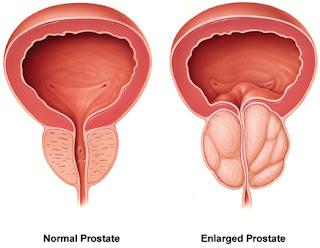 pembesaran kelenjar prostat