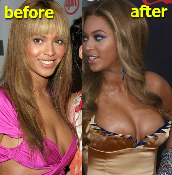 Chatter Busy: Beyonce Breast Implants