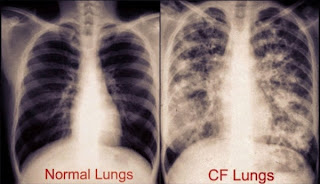 Groundbreaking Treatment For Patients With Cystic Fibrosis