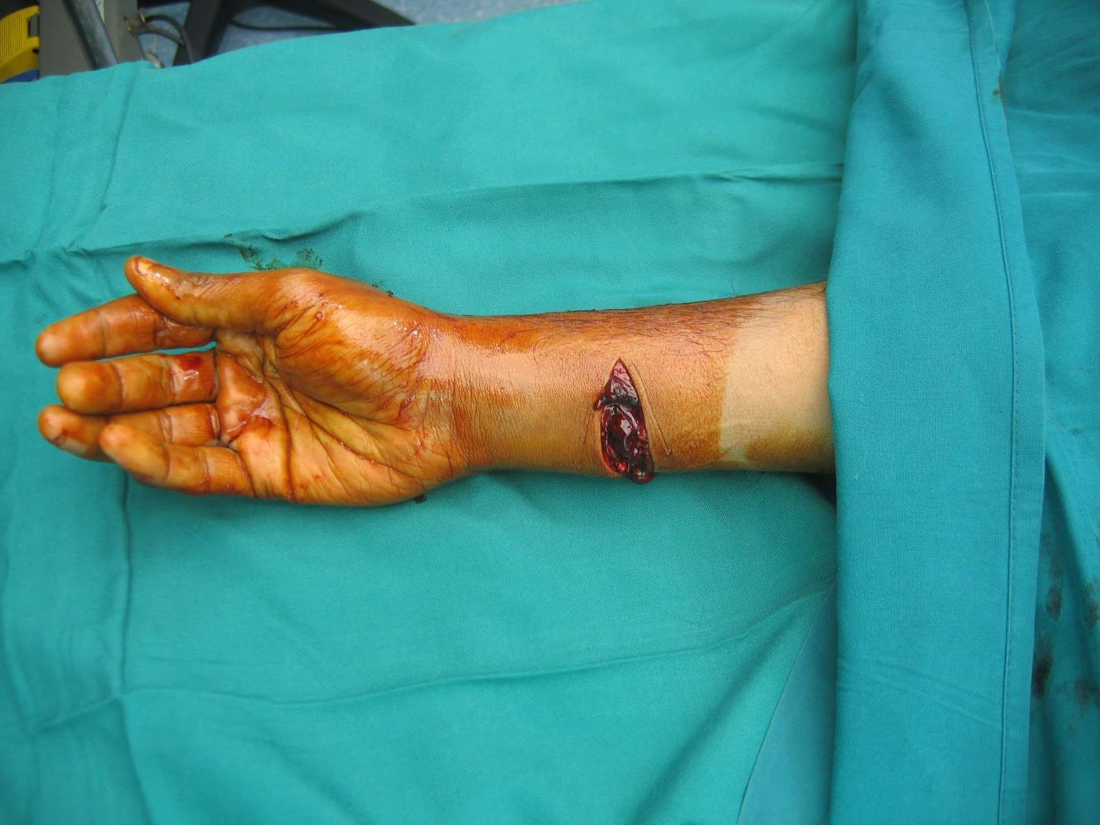 SHARP GLASS CUT INJURY RIGHT WRIST - MULTIPLE FLEXOR ...