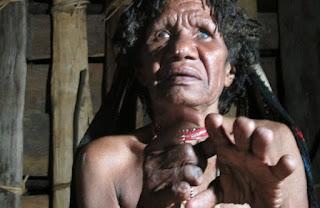 Permalink to Ritual Ikipalin, Tradisi Potong Jari ala Suku Dani, Papua