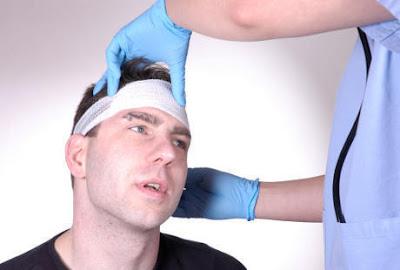 Penyebab dan Cara Mengatasi Cedera Kepala