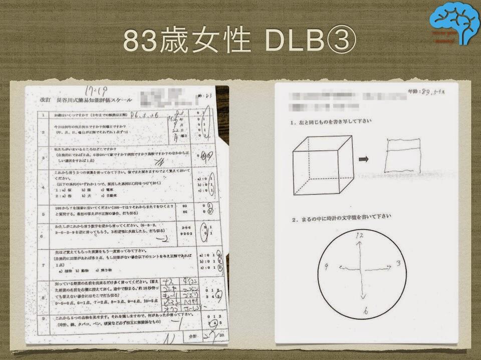 HDSR27/30、時計描画不可、透視立方体模写不可