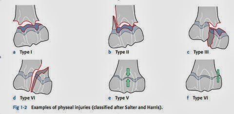 ao principles of fracture management pdf