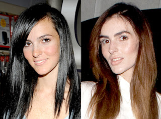 Ali Lohan Before and After Plastic Surgery