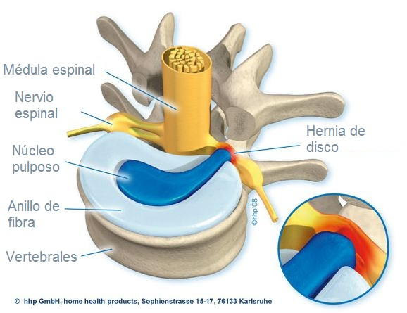 Fisioterapia y Salud: HERNIA DISCAL