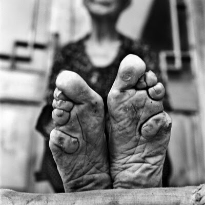 The last foot binding survivor