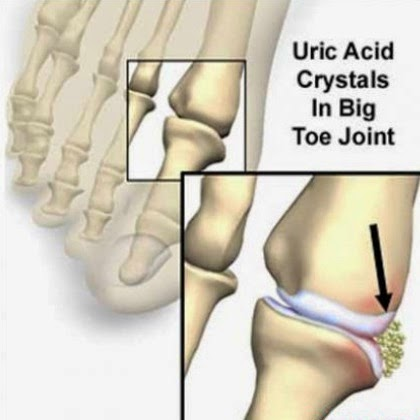 can gout be in all toes foods that eliminate uric acid in the body treatment options for acute gout