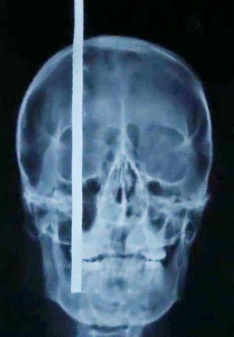 Gambar x-ray menunjukkan besi keluli terpacak di kepala Liu Fenghe.