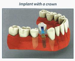 Dental Implant Sun City