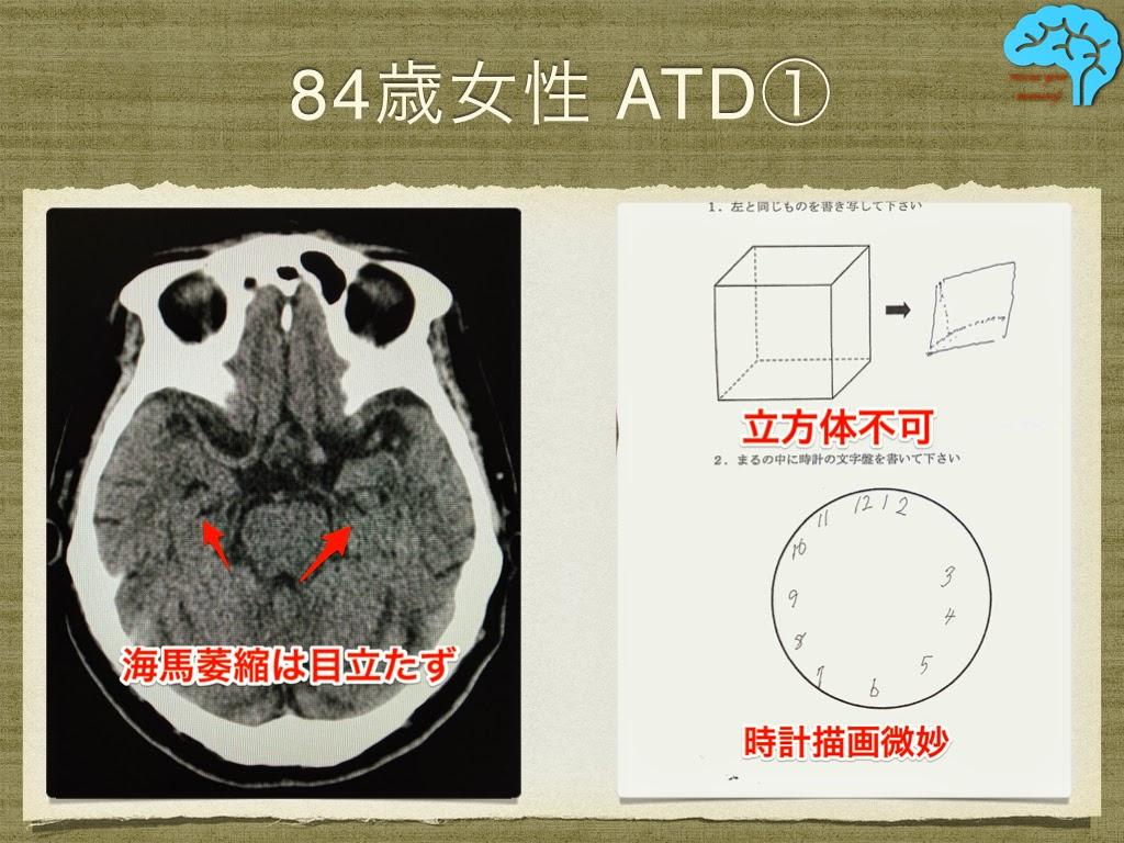84歳女性のアルツハイマー型認知症。透視立方体模写は不可。