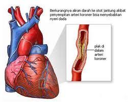 tanda-tanda awal serangan jantung atau stroke