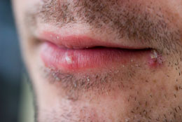 Cloques dans la bouche soins dentaires for Blessure levre interieur